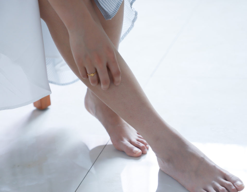Woman's leg with foot injury